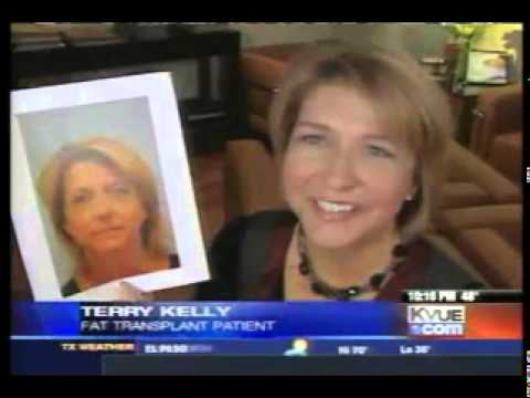 Hair Transplant News & Media