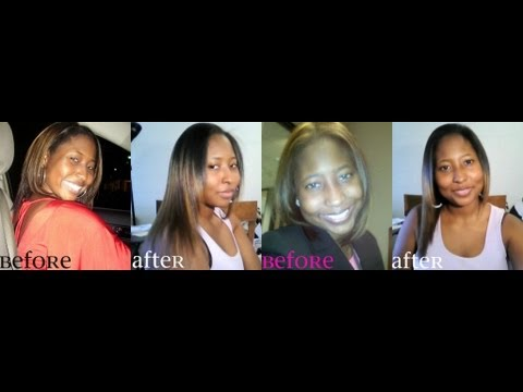 Hairfinity 7 Month Progress  Update #2
