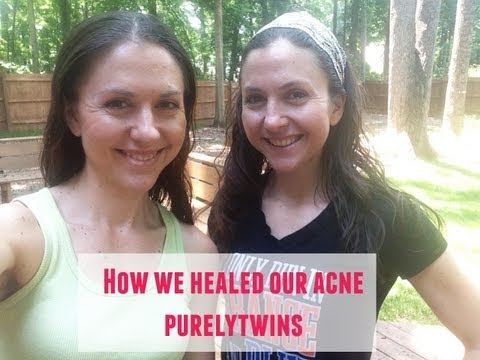 Oil Cleansing Face Update: How we healed our acne