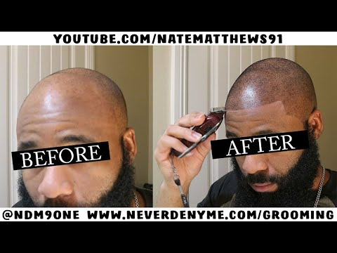 How To Get Your Hairline Back   From Bald To Edge Up   Hairline Restoration