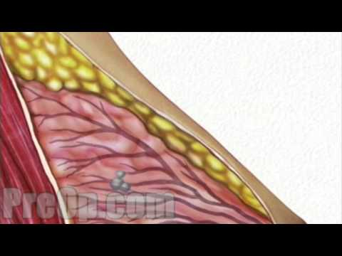 Breast Biopsy Needle Surgery Preop® Patient Education Medical Video video