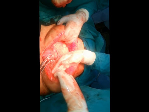 Huge intra-abdominal cyst with daughter cysts inside, cystectomy by laparotomy - Dr Narotam Dewan