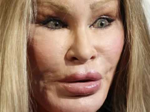 Plastic Surgery Disaster(Jocelyn Wildenstein)