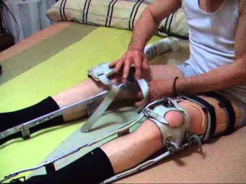 Put leg braces