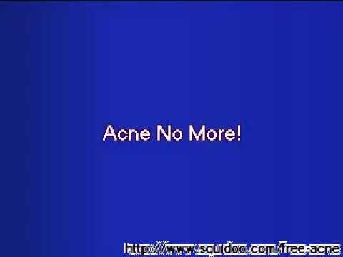 Acne No More Treatment Review Exposed  YouTube