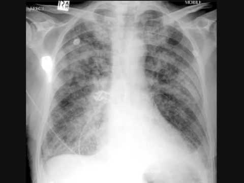 Chest x-ray interpretation, pulmonary edema, heart attack