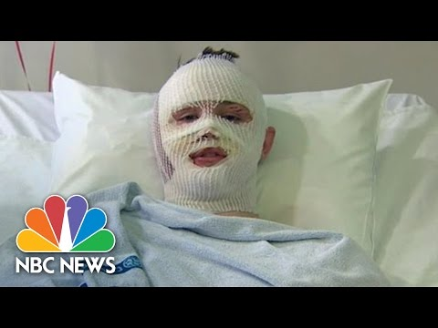 American Teen Recounts Surviving His Second Terror Attack In Brussels | NBC News