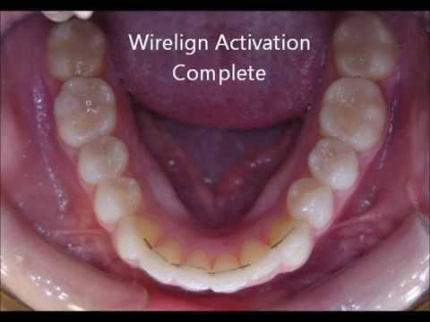 Straighten teeth without braces or removable aligners.wmv