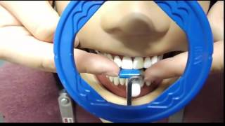 Maxillary Anterior Periapical Placement 7 27 16