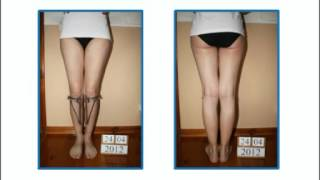 Bow legs (genu varum) correction treatment experience - Patient from Poland - 1