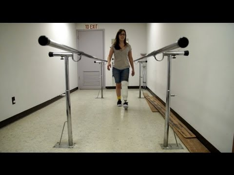 AmputeeOT: First time walking after my below knee amputation with check socket!
