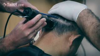 Preparation for hair transplant surgery in Talizi