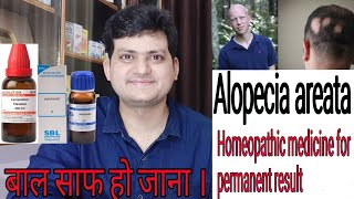Homeopathic medicine for Alopecia areata ? explain everything | permanent result |