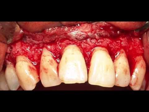 Surgical Crown Lengthening | Gummy Smile Treatment. Kuljeet MEHTA-Periodontist.  www:kmperio.co.uk