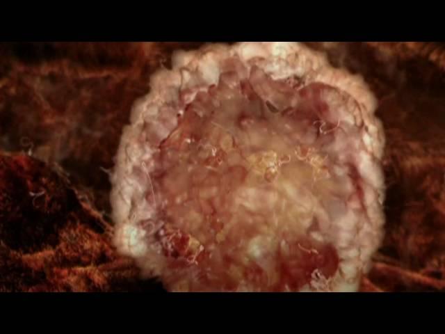 Видеогид. 3 неделя. Определение беременности