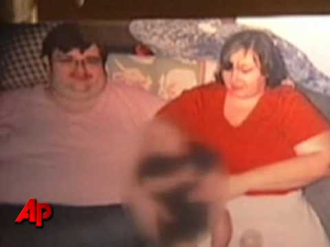 Obese Man Dies After 8 Months in His Recliner