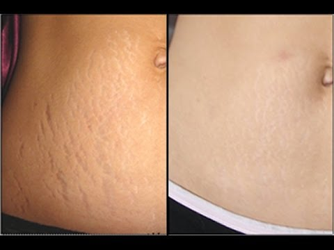 How to Get Rid of Stretch Marks on Legs How to Get Rid of Stretch