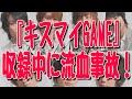 Kis-My-Ft2の番組収録中に流血事故! 4足歩行ギネス記録の玉腰活未がテレビ朝日『キスマイGAME』でケガ!