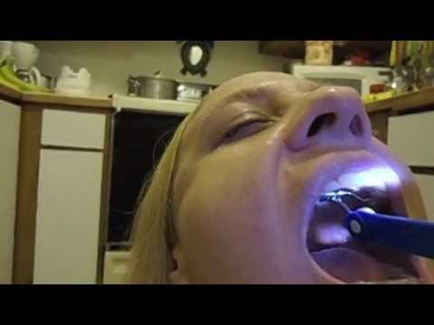 Adult Palate Expander Tightening (reversing teeth pulled 4 braces bicuspid extraction)
