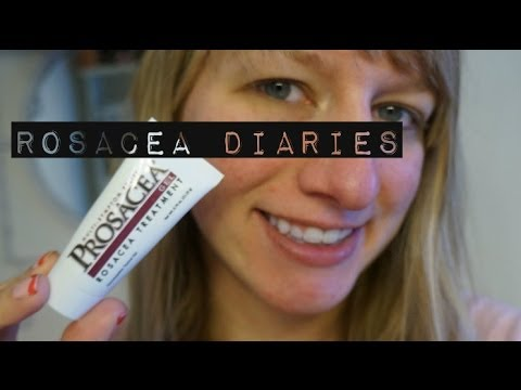 Rosacea Diaries: Struggling with rosacea and acne!   Prosacea and Cetaphil week 1 & 2