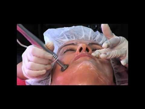 Biothecare Treatments - Cavitation, Microdermabrasion, IPL Rejuvenation, Radio Frequency