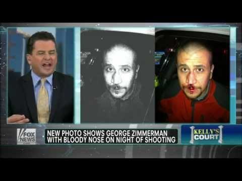 Trayvon Martin Vs. Zimmerman with bloody nose pic