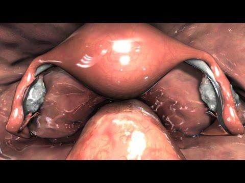 Diagnostic Pelvic Laparoscopy Exam video