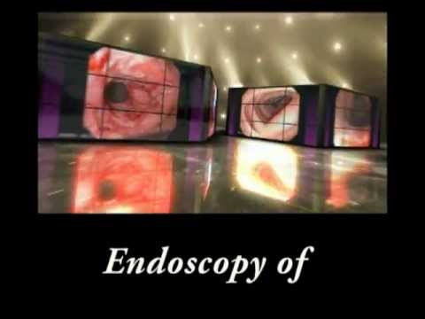 endoscopy cancer of the tongue endoscopy cancer of the tongue tobacco