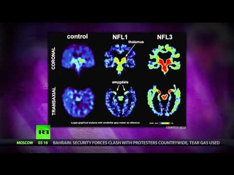 [96] Cancerous Capitalism, NFL Brain Disease, US Education: Turning Kids into Drones