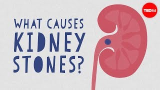 What causes kidney stones? - Arash Shadman