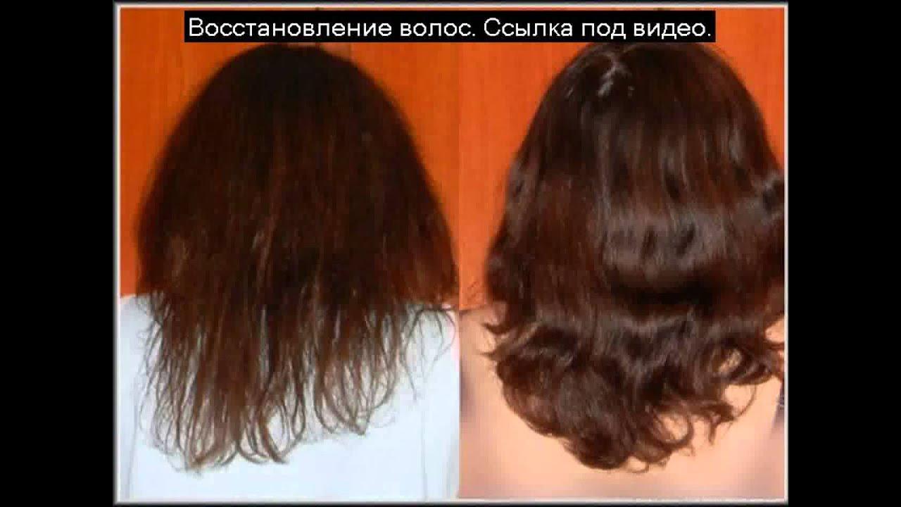 Быстро ли растут волосы от никотиновой кислоты
