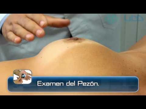 12 Exámen de Mama y Axila   Semiología I thumbnail