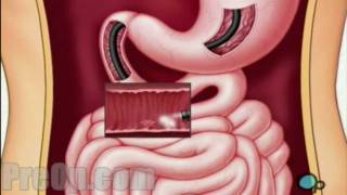 Endoscopy - Upper GI Surgery PreOp® Patient Education
