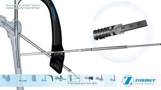 ZNN CM surgical technique