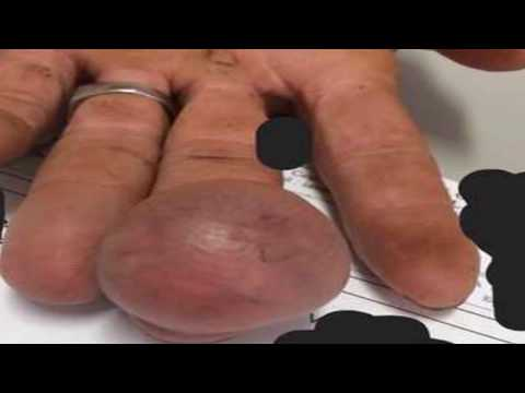 Mr. Blackhead Presents Jigger Removal, Largest Tumors and Anorexia
