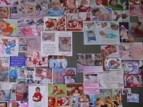 Fisioterapia em prematuros - Repostagem Jeancarlos Marmentini, UPFTV