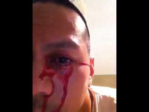 Bleeding eyes caused by a Stye (read description below how it was treated)