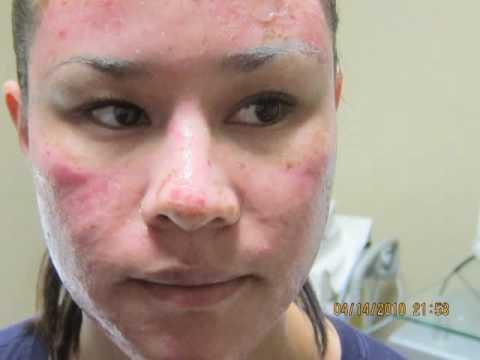 Acne Scar Removal-Pre-Post Pictures-Los Angeles-Orange County