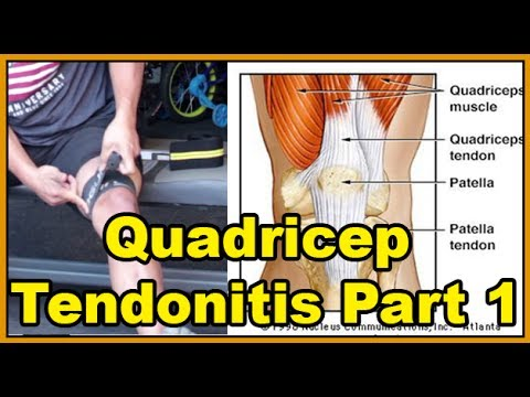 Quadricep Tendonitis and my Anecdotal solutions to knee pain