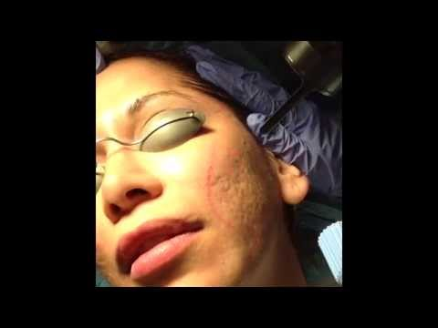 Acne Scarring Treated with Mixto CO2 laser- Dr. David Rahimi- Forever Young, Inc.