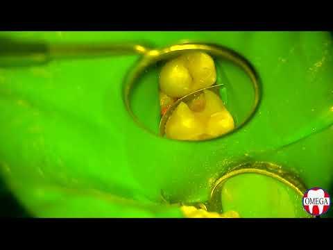Лечение кариеса с помощью окклюзионного шаблона