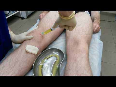 инородное тело коленного сустава код мкб