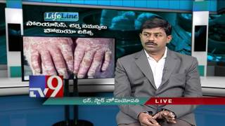 Psoriasis, Skin problems - Homeopathic treatment - Lifeline - TV9
