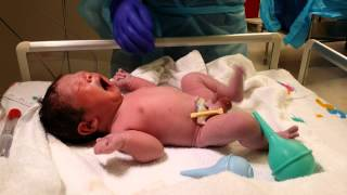 Baby #3 Live Birth in 4K UHD Video C-section Operation Delivery camera recording