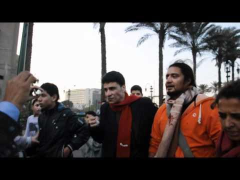 Egyptian activist Malek Moustafa loses an eye from CSF's rubber bullets