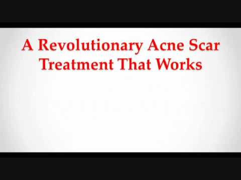 Remove Acne Marks Scars Now!