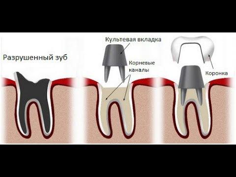 О стоматологии , ответы на вопросы , культевая вкладка , имплантация , штифты
