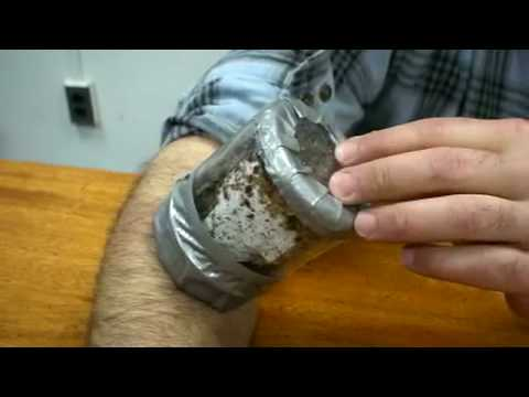 Hundreds of Bed Bugs Biting a Man s Arm