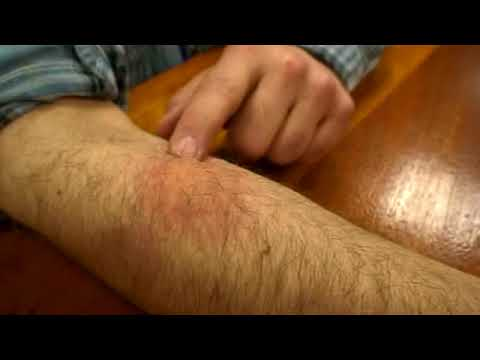 Hundreds of Bed Bugs Biting a Man's Arm