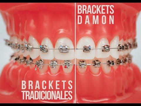จัดฟันดามอนคิว (Damon Q)